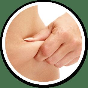 tratamento e cirúrgica plastica da flacidez