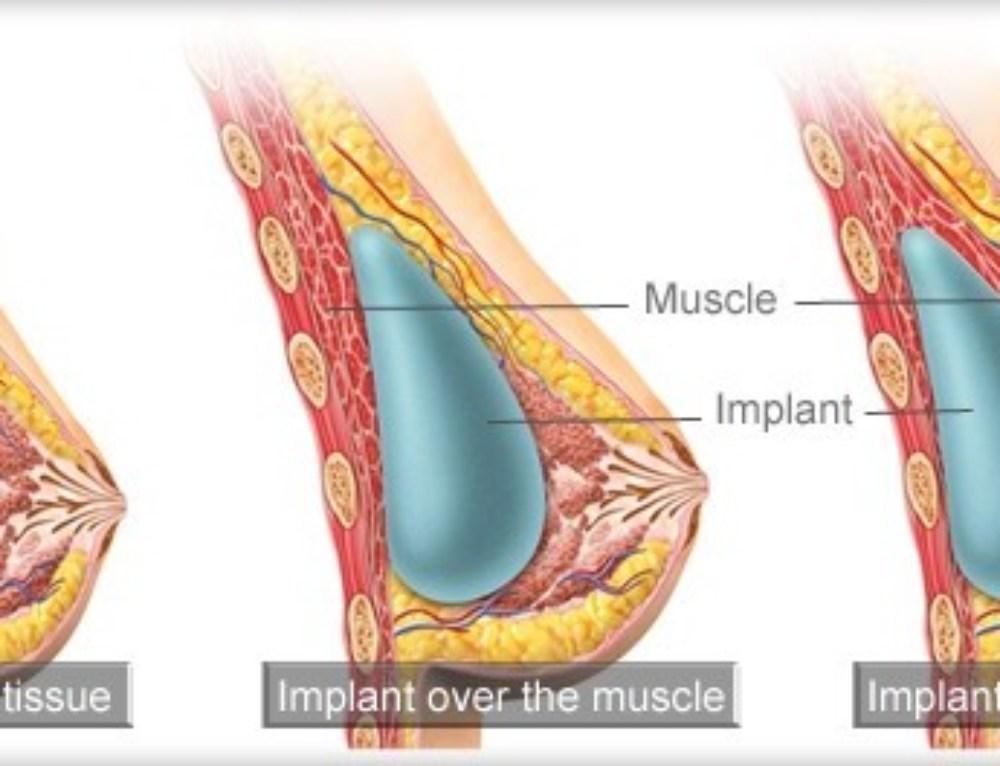 Prótese abaixo ou acima do músculo – Qual é a melhor opção?