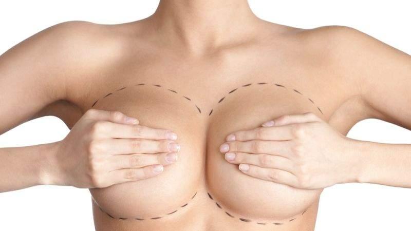 cirurgia plástica nos seios