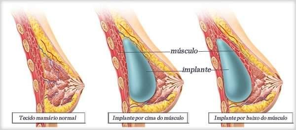 cirurgia mamaria de protese de silicone