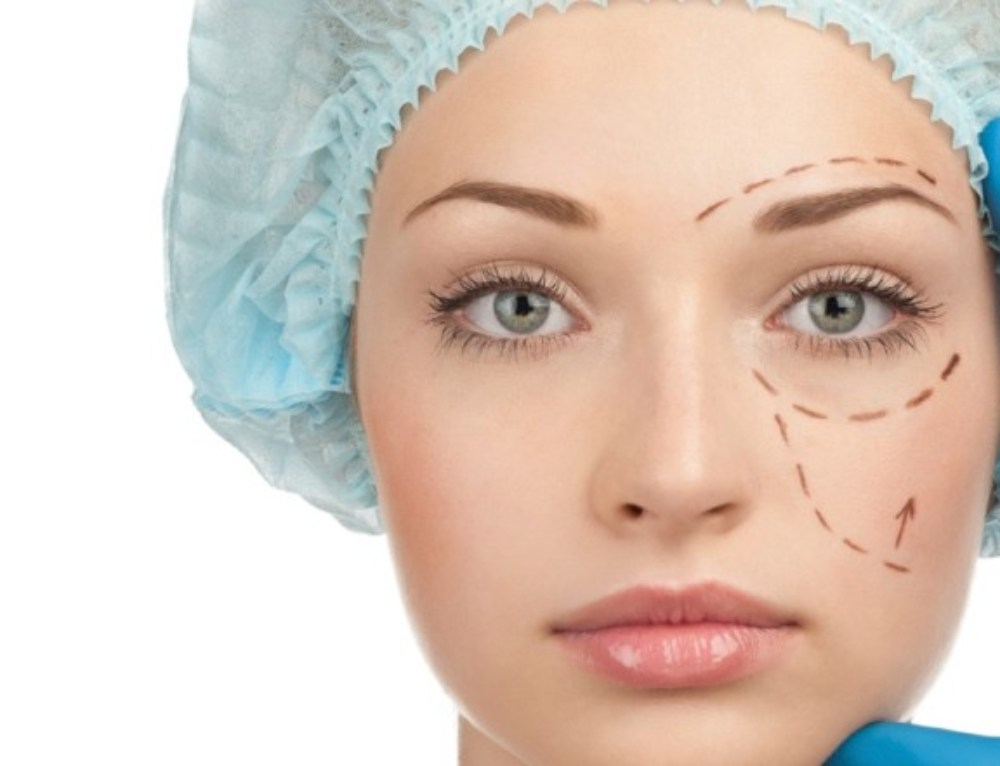 Blefaroplastia: olhar rejuvenescido e descansado
